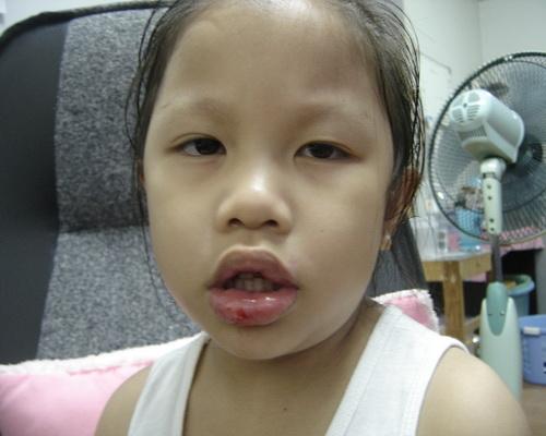 น้องเทียนปากแตก